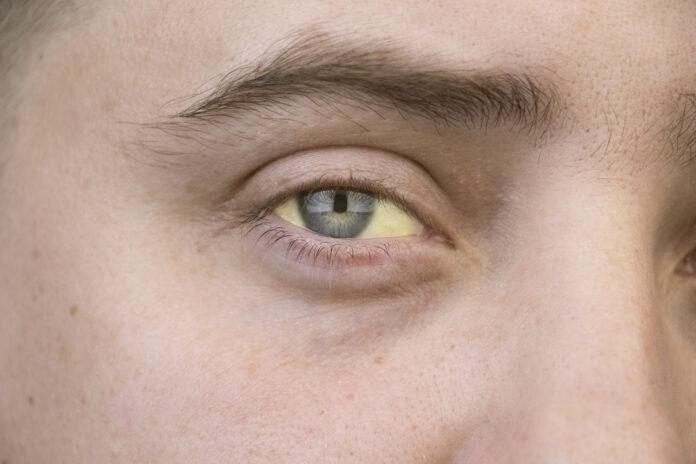 κίτρινο μάτι