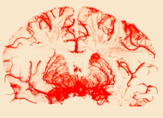 σκιαγράφηση εγκεφάλου