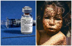 εμβόλιο και ασθενής με ευλογιά