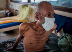 άνδρας με φυματίωση
